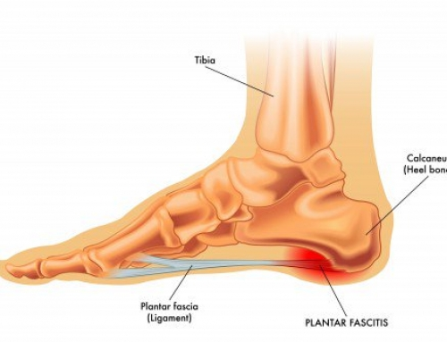 Plantar Fasciitis – What are the symptoms and how can I manage the pain?